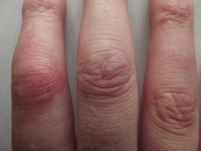 Cure-finger-swelling